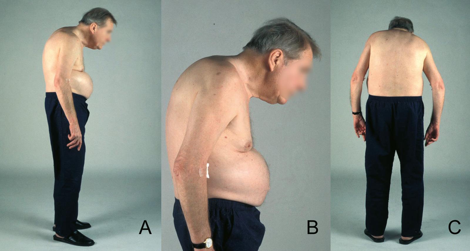 Abb. 5-13: 68-jähriger Patient mit einem Morbus Bechterew. Der Patient ist nicht in der Lage, eine horizontale Blickachse zu erreichen