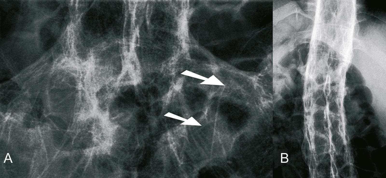 """Abb. 5-14: Vollständige Fusion der ISG-Fugen (A) und Einsteifung der Wirbelsäule (""""Bambusstab"""") (B) bei einem 48-jährigen Patienten mit Morbus Bechterew"""