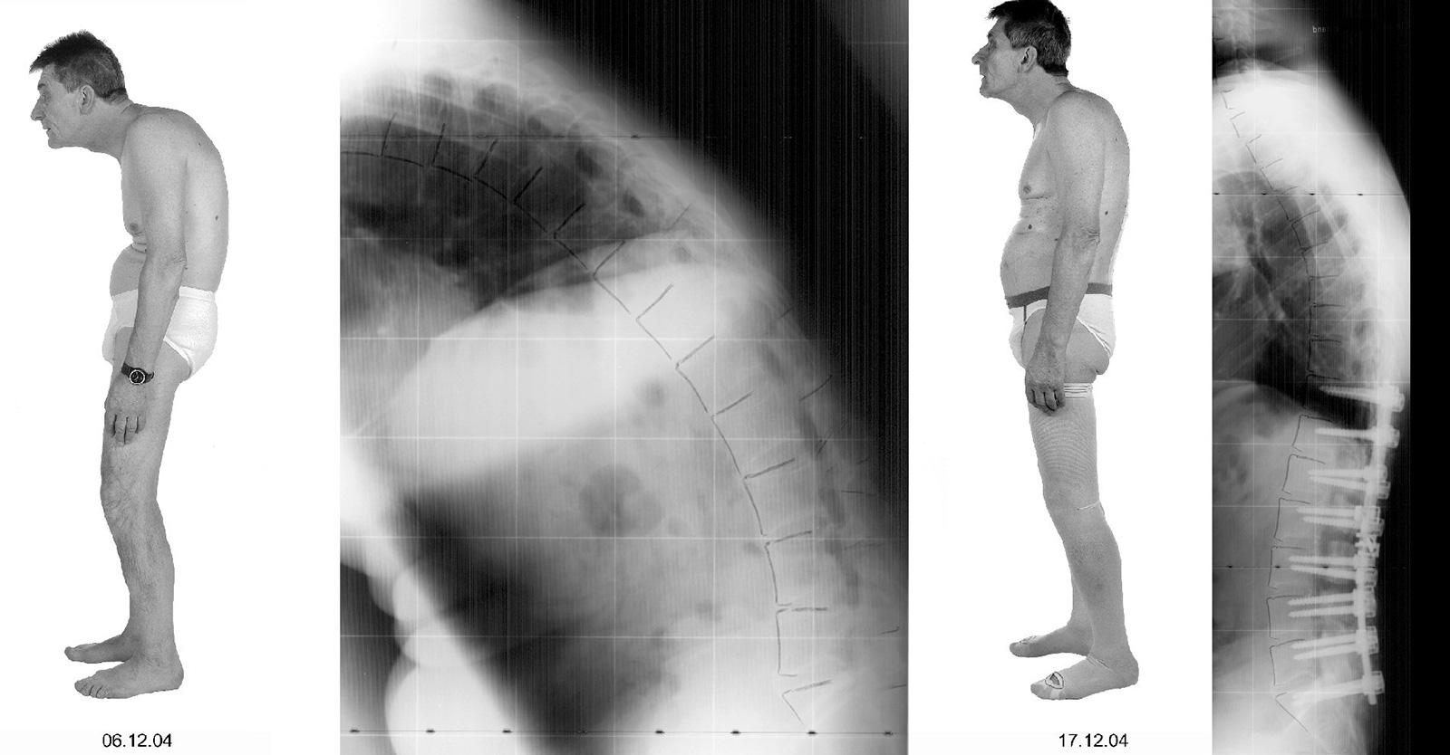 Abb. 5-15: Patient mit einem Morbus Bechterew vor und nach dorsaler Lordosierungsspondylodese T11-S1
