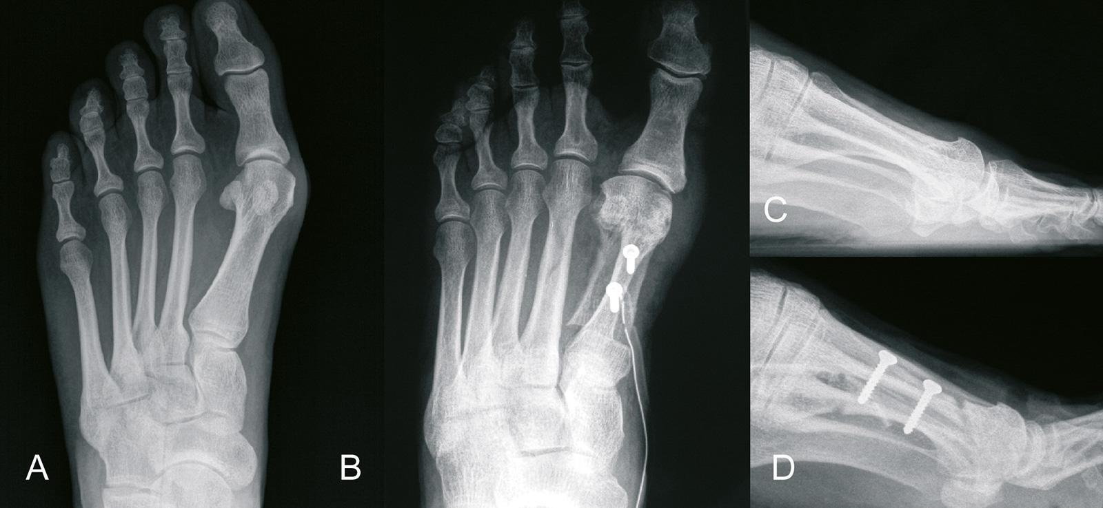 Abb. 6-11: Röntgenbild: vor (A,C) und nach Scarf-Osteotomie (B,D) (Eigentum des Instituts für Klinische Radiologie der Universität Münster)