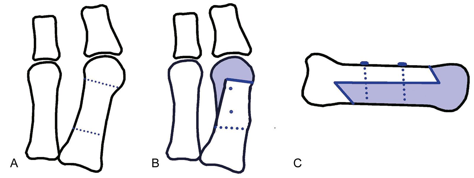 Abb. 6-12: Scarf-Osteotomie: vor (A) und nach Operation (B,C)