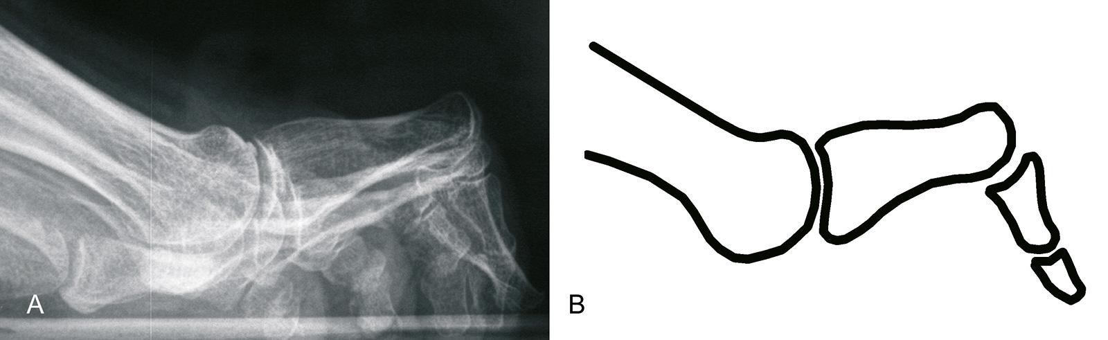 Abb. 6-15: Typisches Röntgenbild (A) und Schemazeichnung (B) einer Krallenzehe