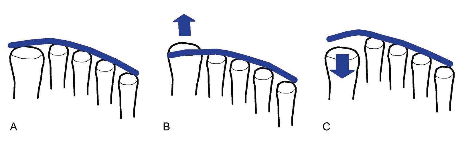 Abb. 6-17: Ausrichtung der Metatarsalköpfchen (A), Plusvariante mit relativer Überlänge des Metatarsale 1 (B) und Minusvariante mit relativer Verkürzung des Metatarsale 1 (C). Die Minusvariante ist am häufigsten