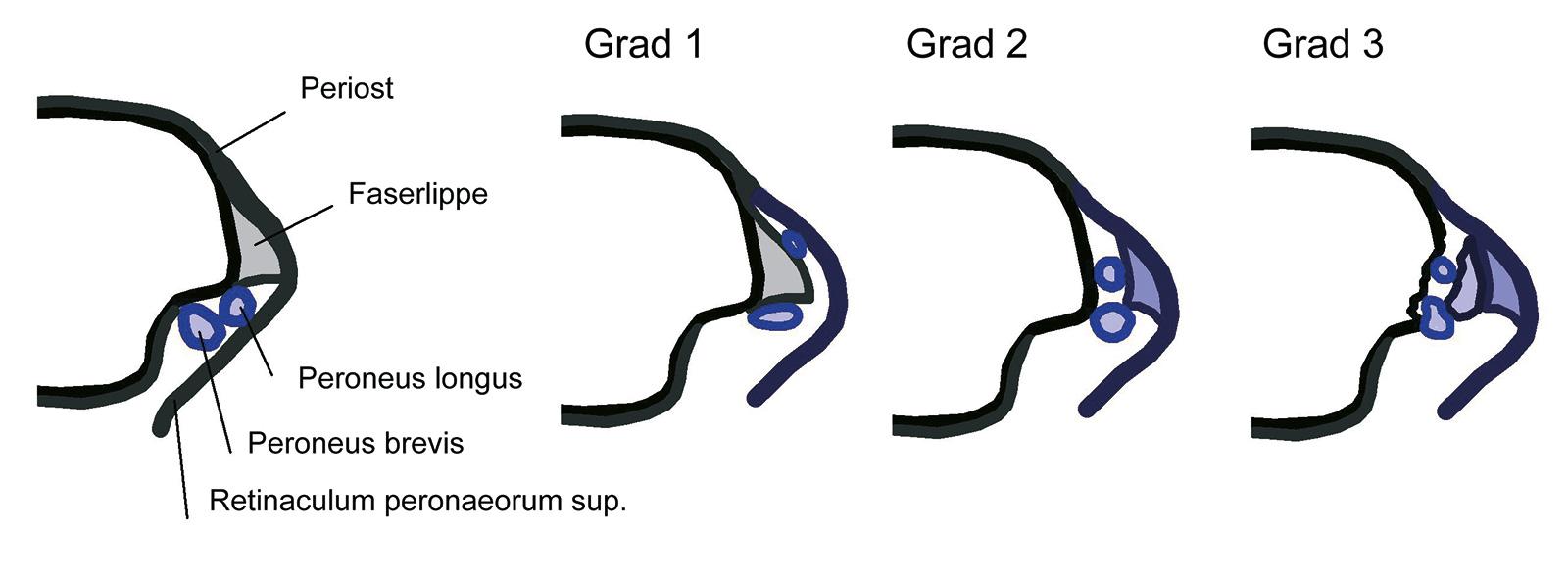 Abb. 6-18: Darstellung des Sulcus malleolaris der Fibula. Einteilung der Peronealsehnenluxation nach Eckert
