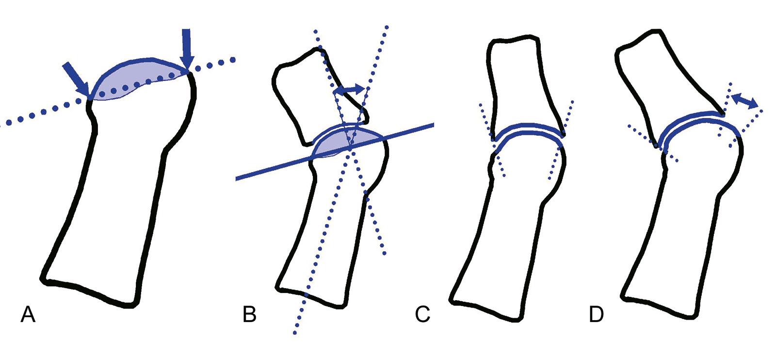 Abb. 6-3: Bestimmung der Linie an die distale Gelenkfläche des Metatarsale 1 (A), Winkel der distalen metatarsalen Gelenkfläche (B), kongruente (C) und inkongruente (D) Gelenkfläche
