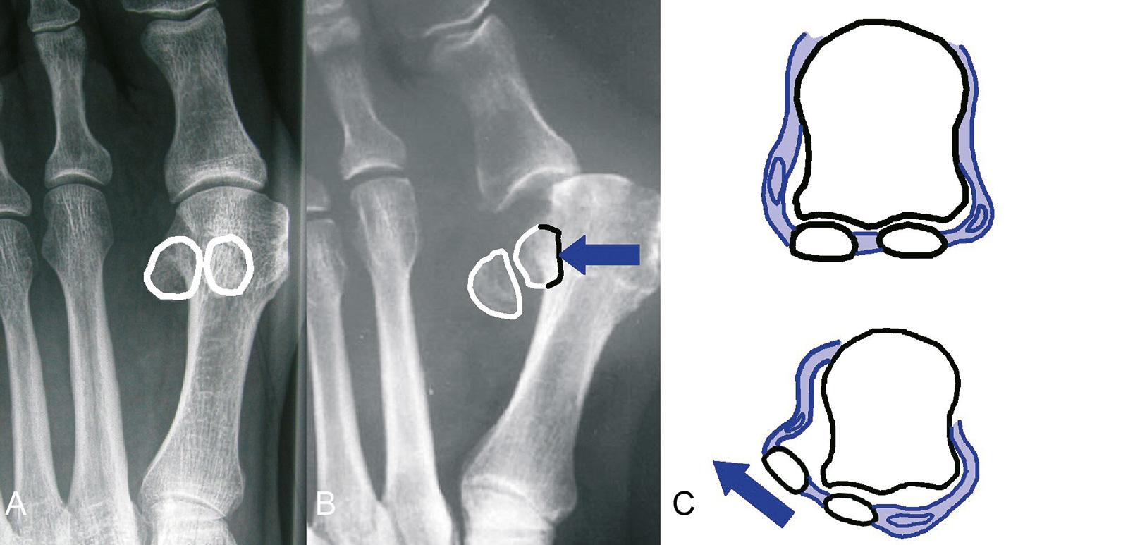 Abb. 6-5: Hallux valgus ohne (A) und mit Subluxation der Sesambeine (B), Schemazeichnung der lateralen Subluxation der Sesambeine (C)