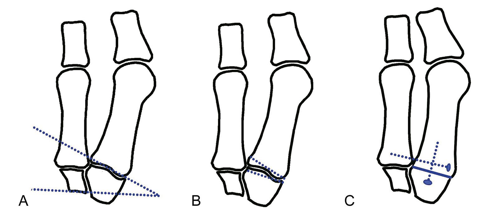 Abb. 6-7: Instabilität des Tarsometatarsalgelenks mit einer Gelenkneigung >15 Grad (A), Osteotomie (B) und Schraubenarthrodese in der Technik nach Lapidus (C), alternativ: Plattenosteotosynthese