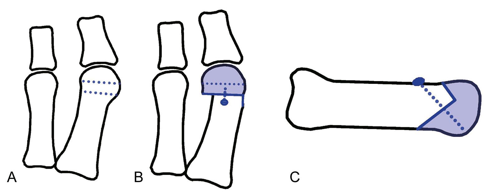 Abb. 6-8: Chevron-Osteotomie: vor (A) und nach der Operation (B,C)