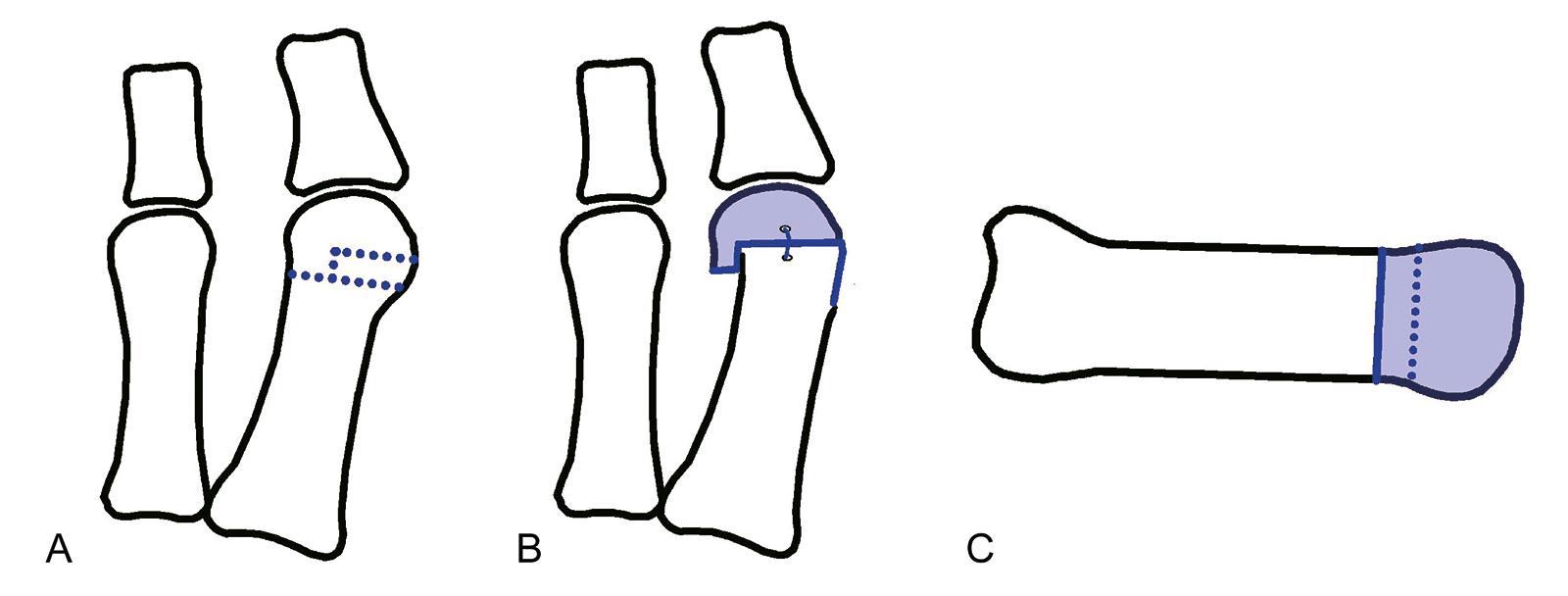 Abb. 6-9: Mitchell-Osteotomie: vor (A) und nach der Operation (B,C)