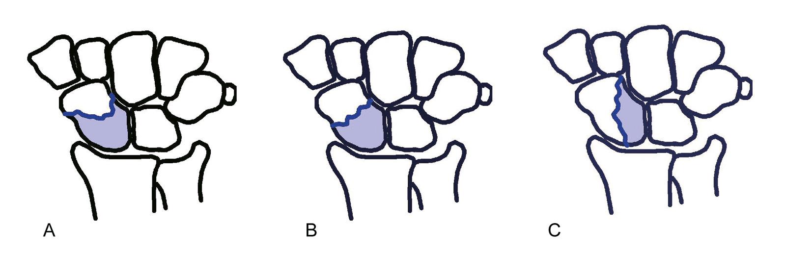 Abb. 7-10: Einteilung der Kahnbeinfrakturen nach Russe: horizontaler Schrägbruch (A), Querbruch (B) und vertikaler Schrägbruch (C)