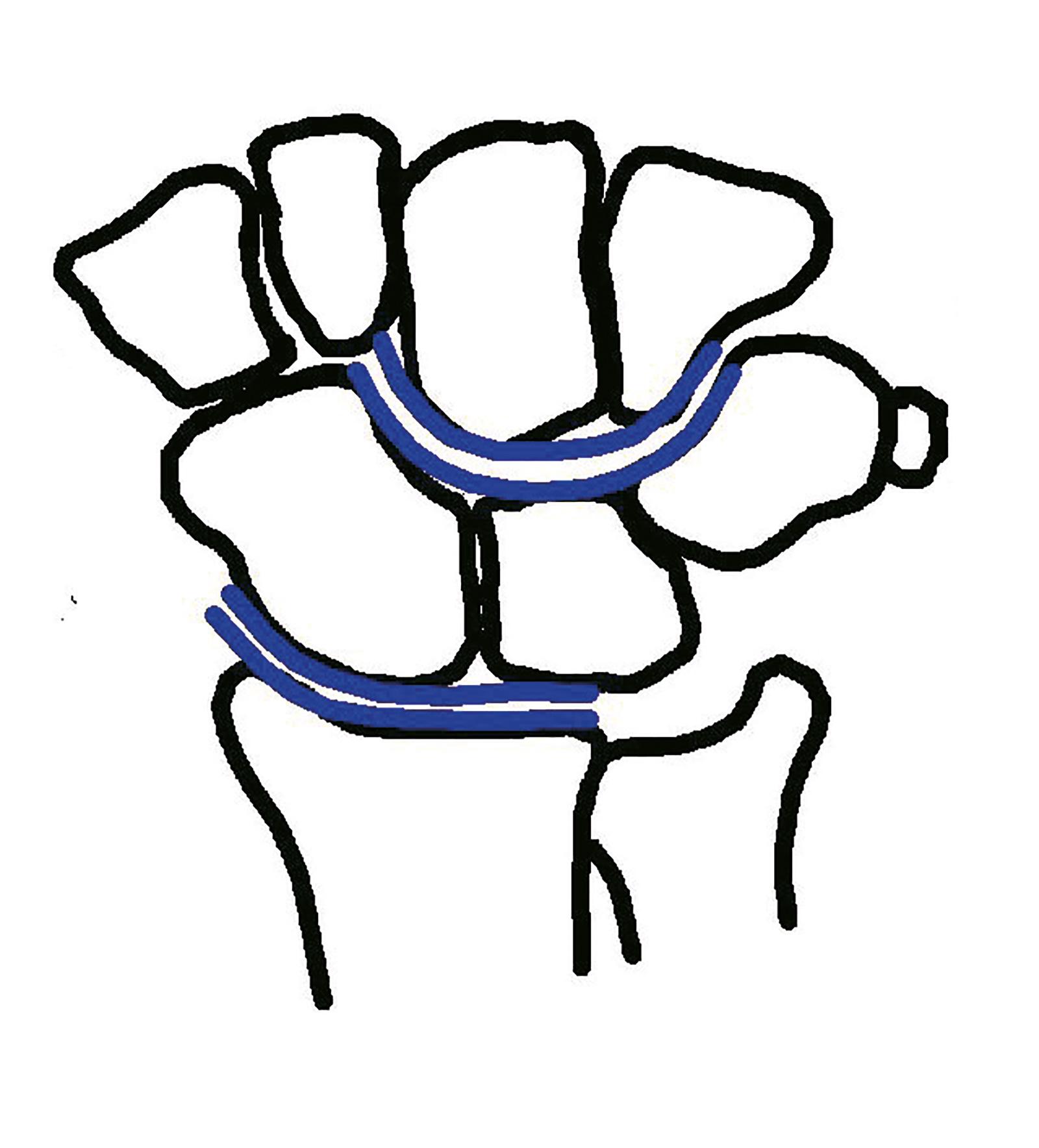 Abb. 7-11: Eine Linie an die Gelenkflächen des Scaphoideum und Lunatum verläuft parallel zu der Gelenkfläche des Radius, genauso wie eine Linie an die Gelenkfläche des Scaphoideum und Lunatum parallel zu der Gelenkfläche des Capitatum und Hamatum verläuft