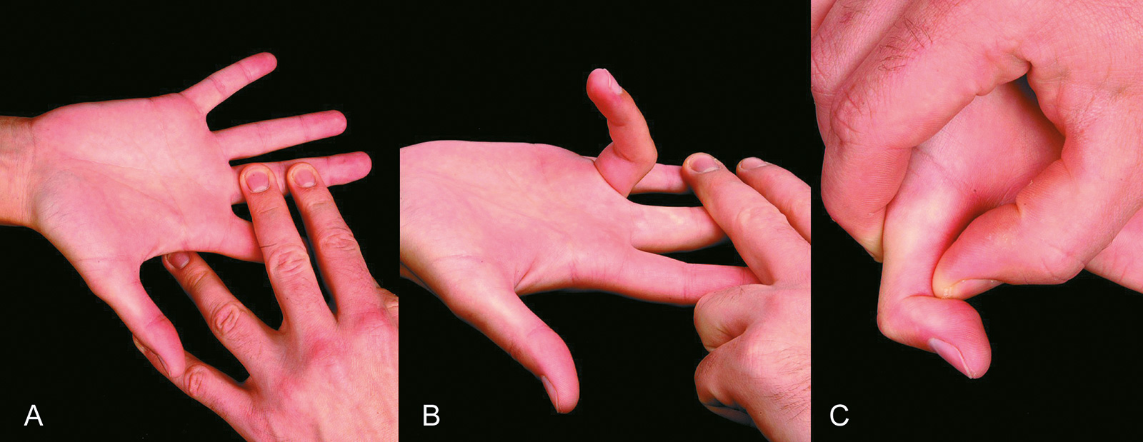 Abb. 7-16: Provokationstest für den Flexor digitorum profundus (A), für den Flexor digitorum superficialis (B) und für den Flexor pollicis profundus (C)