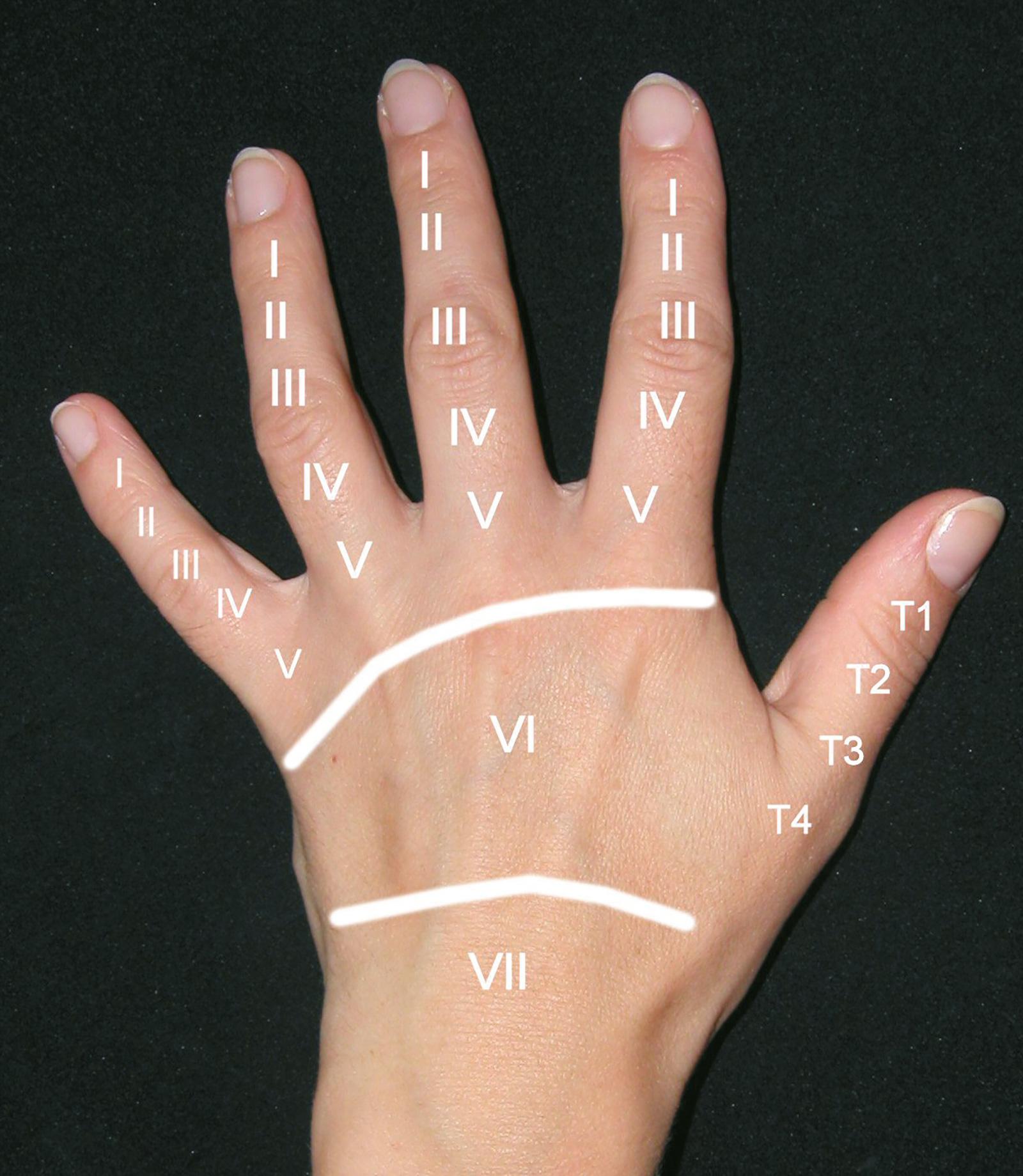 Abb. 7-20: Zonen für die Einteilung von Strecksehnenverletzungen nach Kleinert