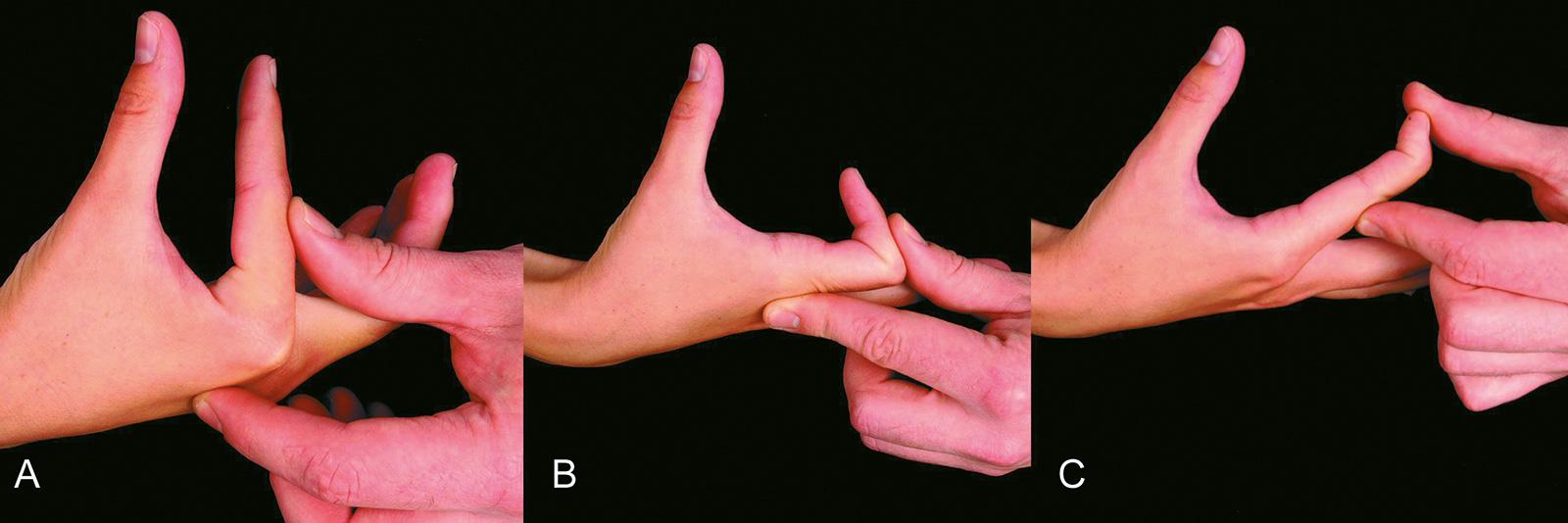 Abb. 7-21: Prüfen der Streckung im Metacarpophalangealgelenk (A), im proximalen Interphalangealgelenk (B) und im distalen Interphalangealgelenk (C)