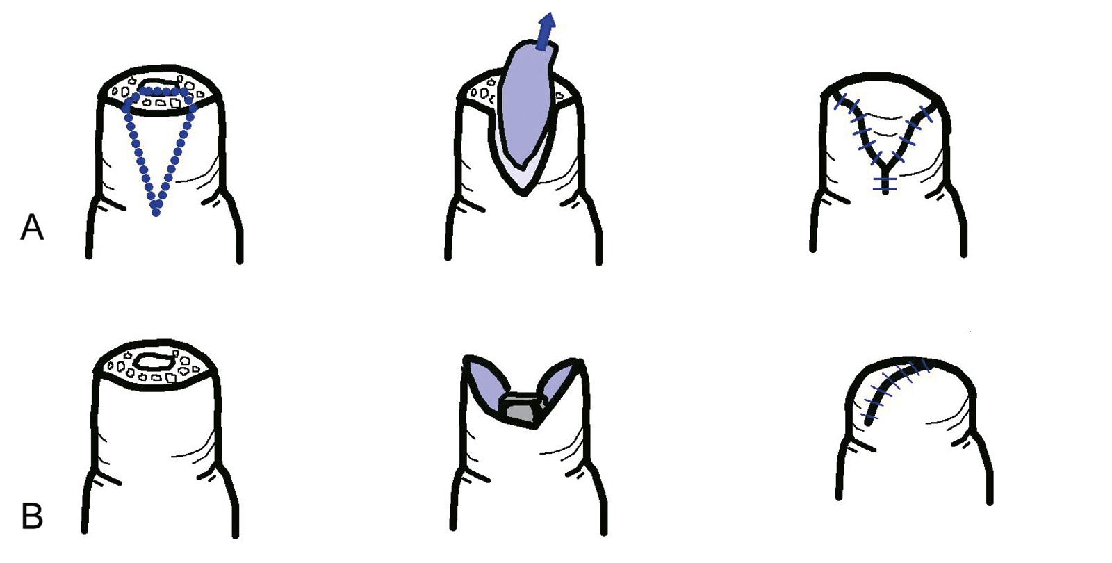 Abb. 7-2: Deckung des Defekts mit einer V-Y-Plastik der palmaren Haut, ähnlich erfolgt die Kutler Lappenplastik mit jeweils einem medialen und lateralen Lappen (A). Direkter Defektverschluss mit einem palmaren und dorsalen Hautlappen (B)