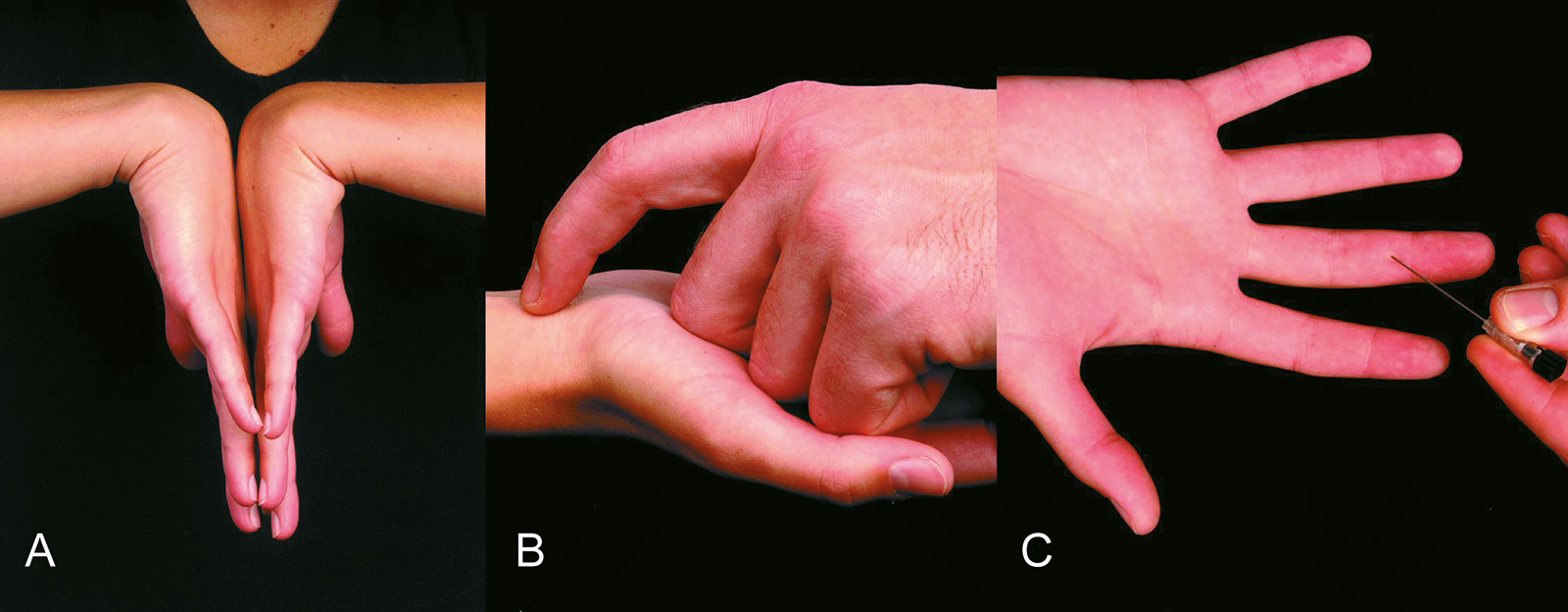 Abb. 7-26: Phalen-Test (A), Hoffmann-Tinnel'sches Zeichen (B) und Untersuchung der Zweipunktdiskrimination (C)