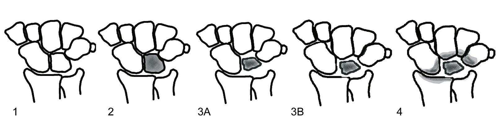 Abb. 7-31: Einteilung des Morbus Kienböck nach Stahl und Lichtmann