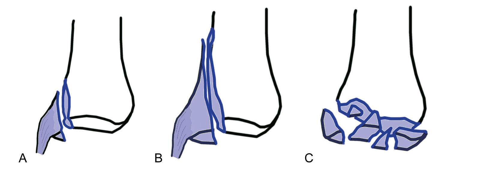 Abb. 7-4: Intraartikuläre Frakturen der Basis der proximalen Phalanx: knöcherner Ausriss des Seitenbandes (A), vertikaler Scherfraktur (B) und Trümmerfraktur (C)