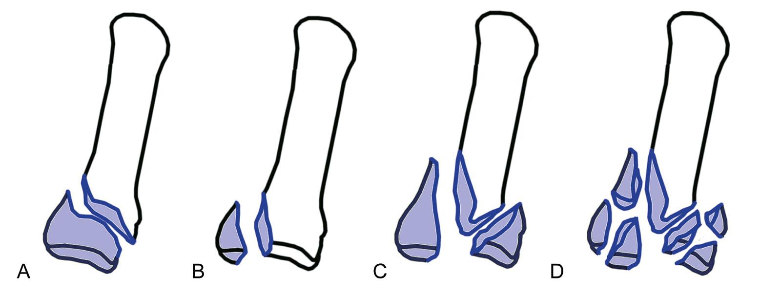 Abb. 7-7: Frakturen der Basis des Metacarpale 5: extraartikulärer Schrägbruch (A), 2-Fragmentbruch (B), 3-Fragmentbruch (C) und Trümmerfraktur (D)