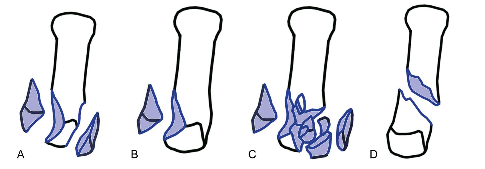 Abb. 7-8: Frakturen des Metacarpale 1: Rolando-Fraktur (A), Bennett-Fraktur (B), Trümmerfraktur (C) und Winterstein-Fraktur (D)