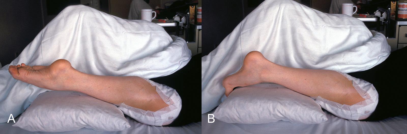 Abb. 8-10: Nach einer Umkehrplastik fungiert das Sprunggelenk als Kniegelenk (A-B)