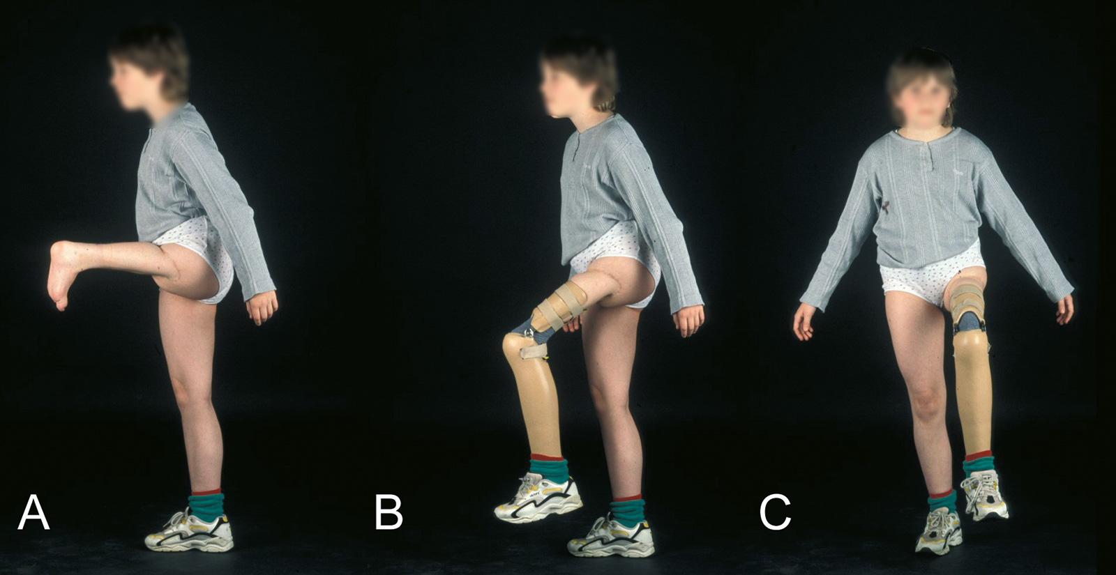 Abb. 8-11: 9-jähriges Mädchen: Zustand nach einer A1-Umkehrplastik bei einem Osteosarkom des distalen Femurs