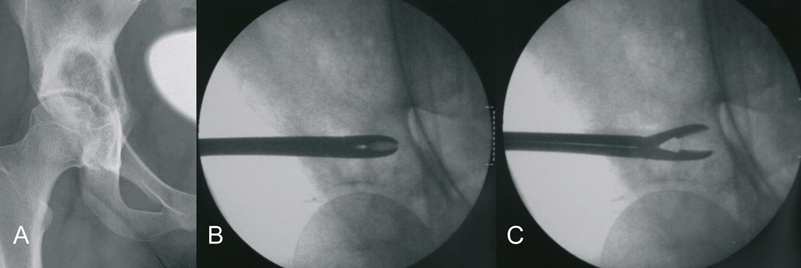 Abb. 8-1: Unklarer Prozess des rechten Os ilium (A). Probeentnahme (B-C)