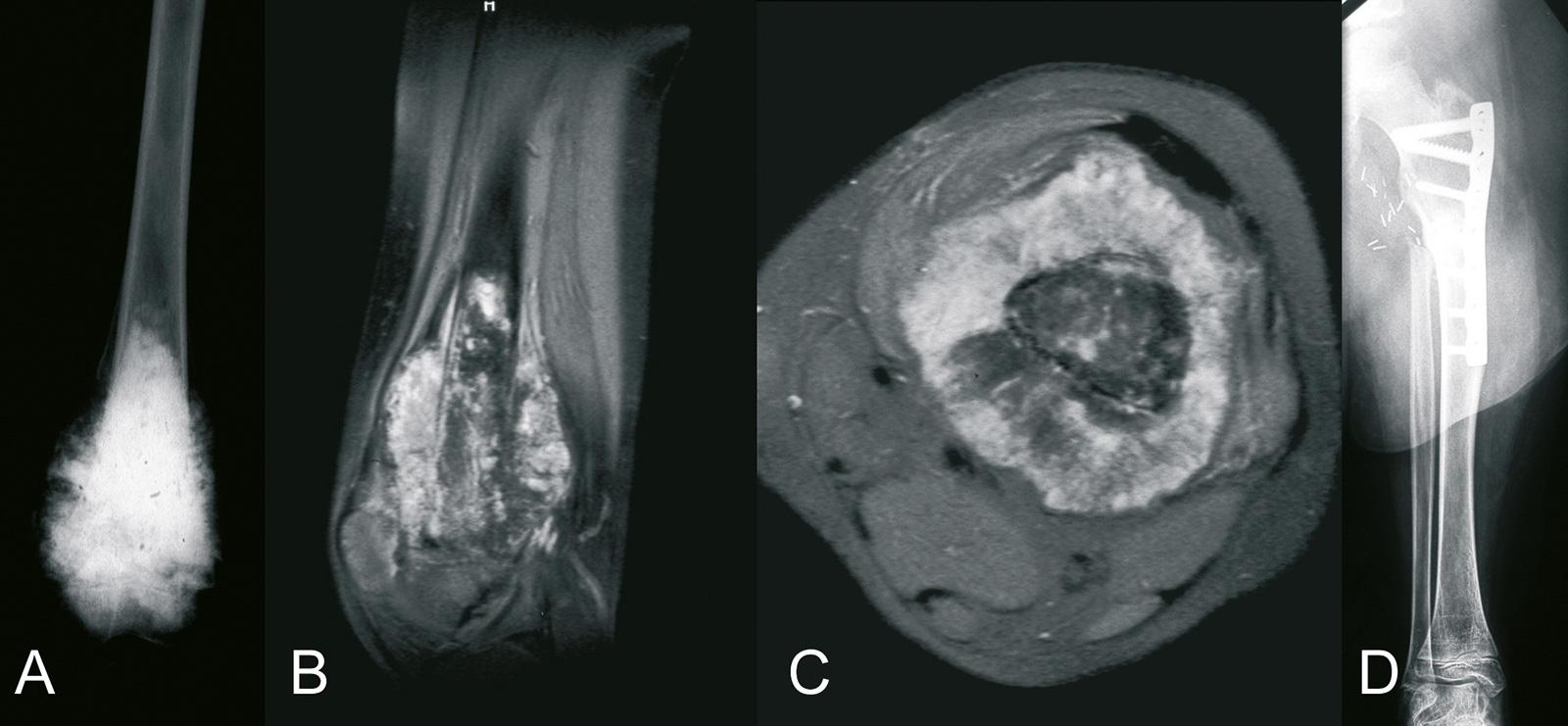 Abb. 8-12: Osteosarkom des distalen Femurs (A-C). Zustand nach einer A1-Umdrehplastik (D)