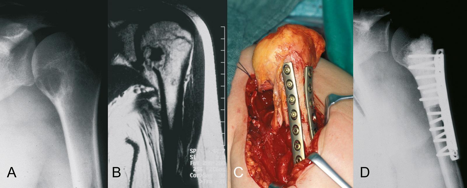 Abb. 8-14: Chondrosarkom des proximalen Humerus (A-B), intraoperatives Bild nach Rekonstruktion mit einem strukturellen Allograft (C). Postoperatives Röntgenbild: der Markraum ist mit PalacosZement aufgefüllt (D)