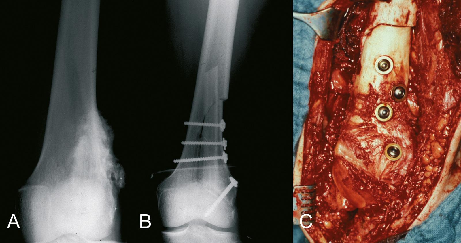 Abb. 8-15: Parossales Osteosarkom des distalen Femurs (A), nach der Tumorresektion erfolgte die Defektrekonstruktion mit einer Allografthalbschale und einer autologen Fibula (B-C)