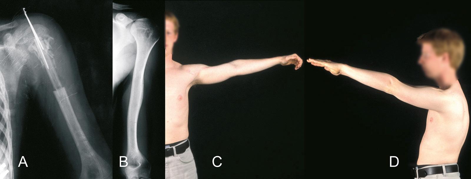 Abb. 8-19: Defektrekonstruktion mit einer gefäßgestielten Fibula (A), Hypertrophie des Transplantates (B) und funktionelles Ergebnis (C-D) 3 Jahre nach der Operation (A,B: Eigentum des Instituts für Klinische Radiologie der Universität Münster)