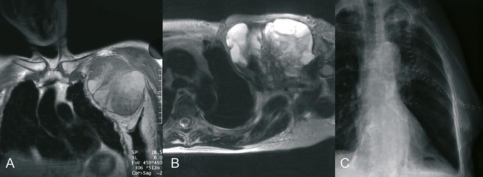 Abb. 8-2: Ausgedehnter Tumor im Bereich der linken Axilla (A-B). Fore Quarter Amputation (C)