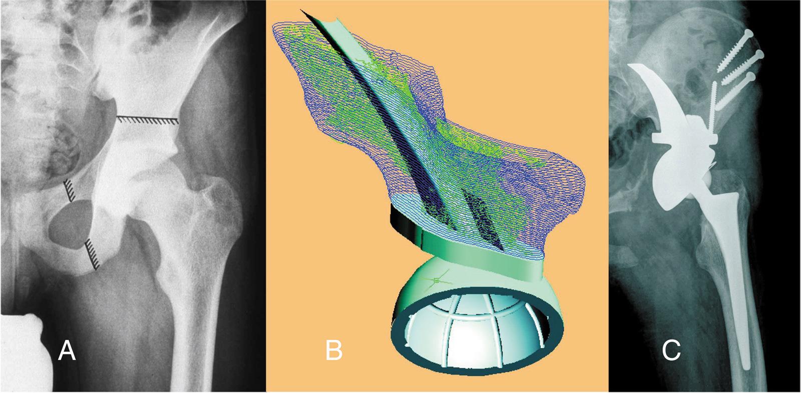 Abb. 8-23: Defektrekonstruktion mit einem Beckenteilersatz (A-C) (Mit freundlicher Genehmigung der Firma Implantcast)