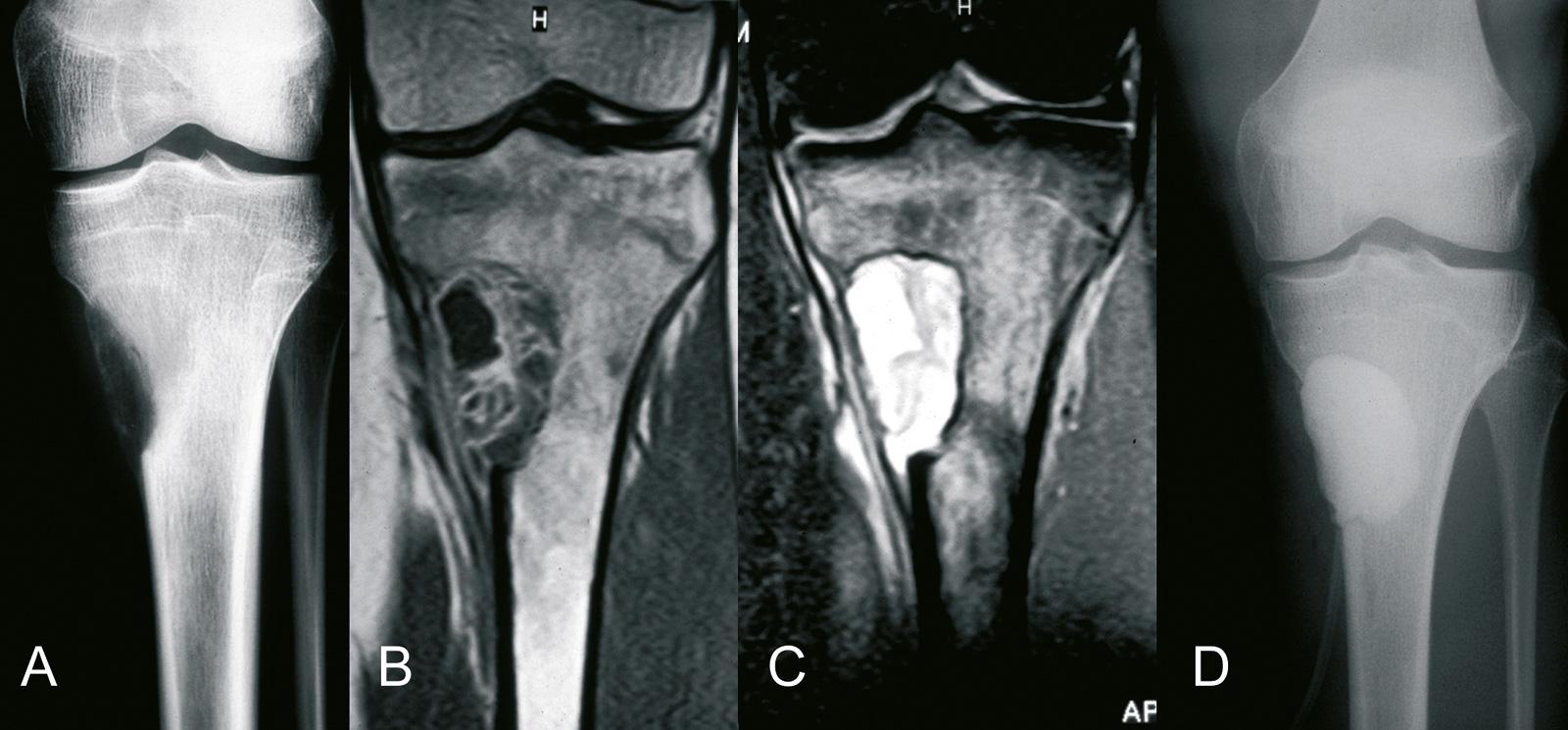 Abb. 8-26: AKZ der proximalen Tibia (A-C), typische Kontrastmittelaufnahme im Bereich der Septen (B). Nach Kürettage der Läsion erfolgte die Auffüllung mit Knochenzement (D) (Eigentum des Instituts für Klinische Radiologie der Universität Münster)