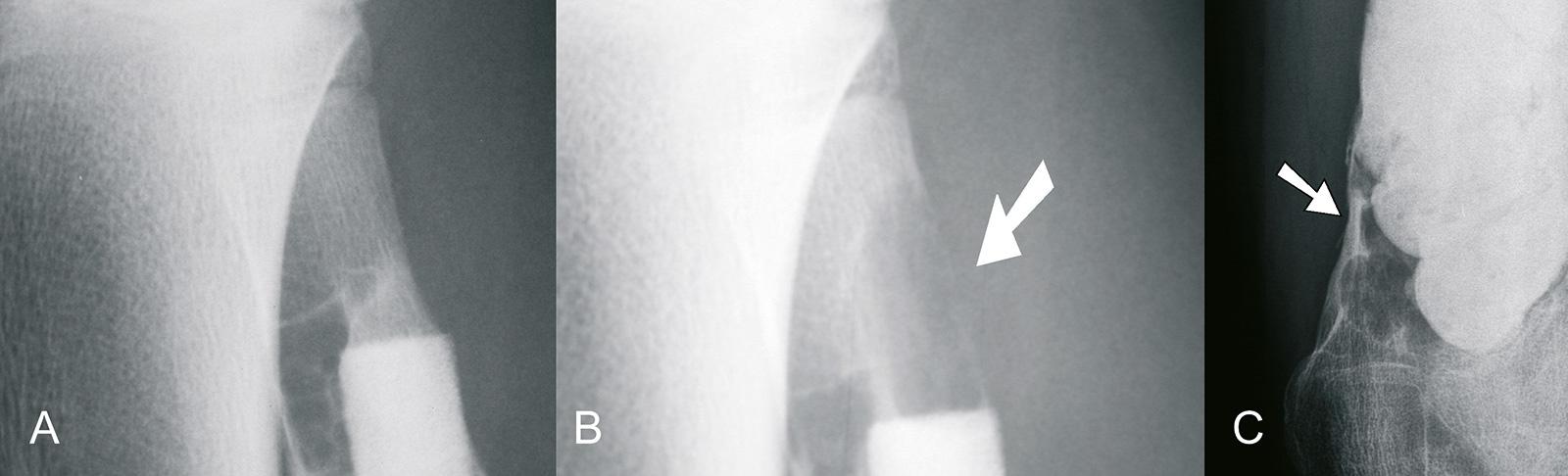 Abb. 8-28: Rezidiv nach Kürettage einer AKZ und Defektauffüllung mit Endobone (A-B), Rezidiv nach Kürettage und Zementauffüllung (C)