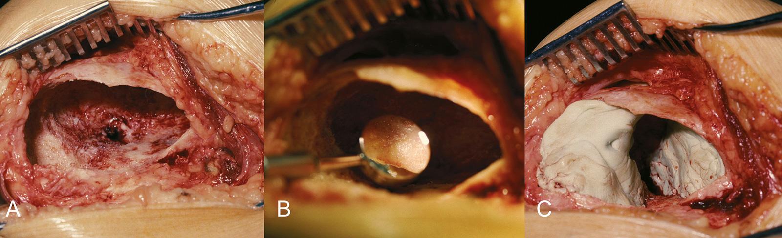 Abb. 8-30: Kürettage eines Riesenzelltumors (A), mit einem Zahnarztspiegel können auch kleine Restanteile des Tumors in den Randbereichen nachgewiesen werden (B), Zementauffüllung des Defekts (C)
