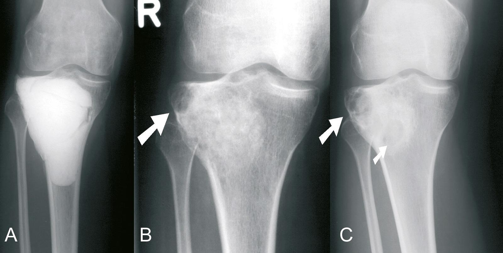 Abb. 8-31: 2 Jahre nach Kürettage und Knochenzementauffüllung eines RZT in der proximalen Tibia (A) wird der Zement entfernt und der Defekt mit autologer Spongiosa aufgefüllt (B), Lokalrezidiv (B-C) (Eigentum des Instituts für Klinische Radiologie der Uni