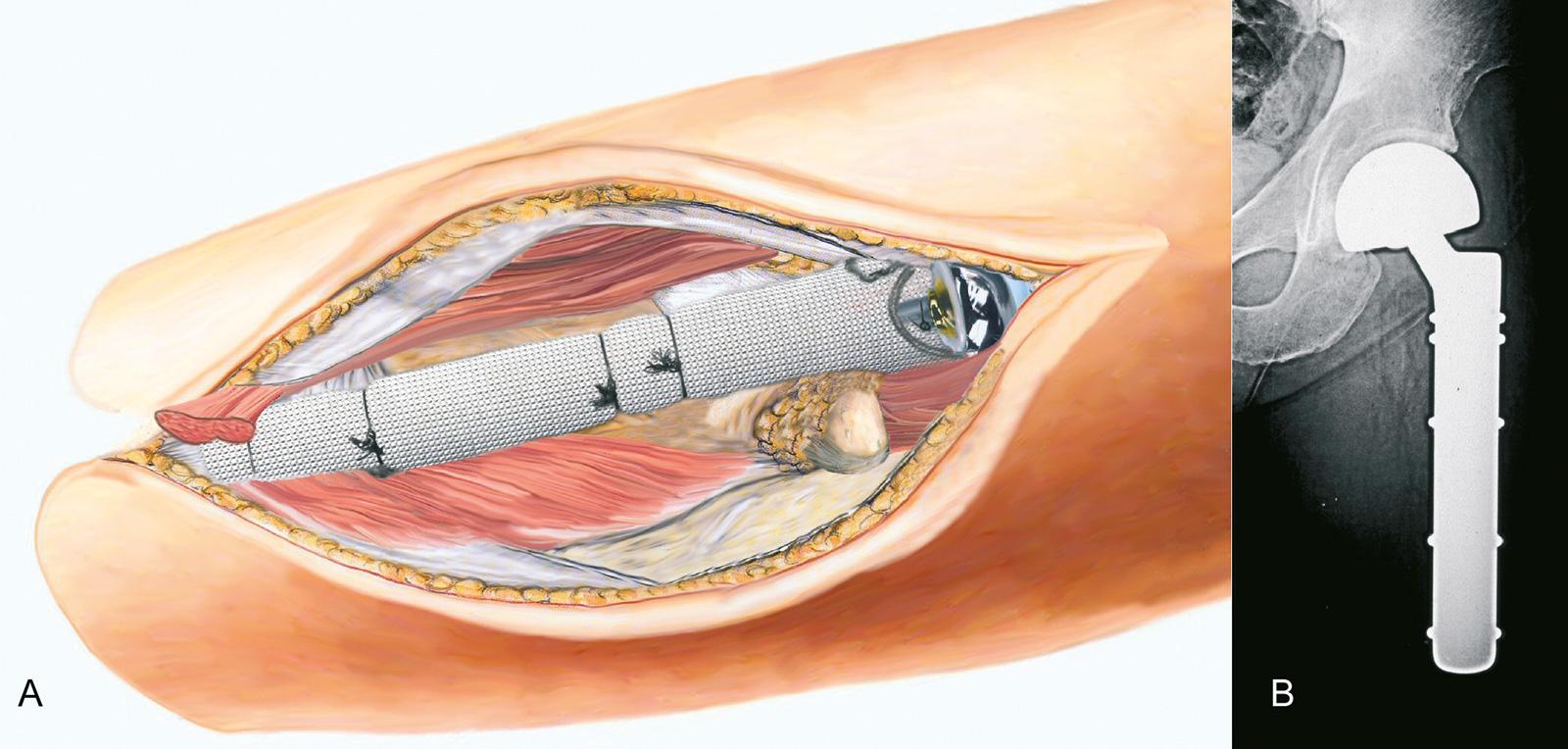 Abb. 8-3: Stumpfaufbauplastik nach Resektion eines G3 Weichteilsarkoms (A,B), die Prothese (MUTARS, Implantatcast) wird mit einem Trevira-Schlauch bedeckt, um eine bessere Verankerung für die Weichteile zu schaffen