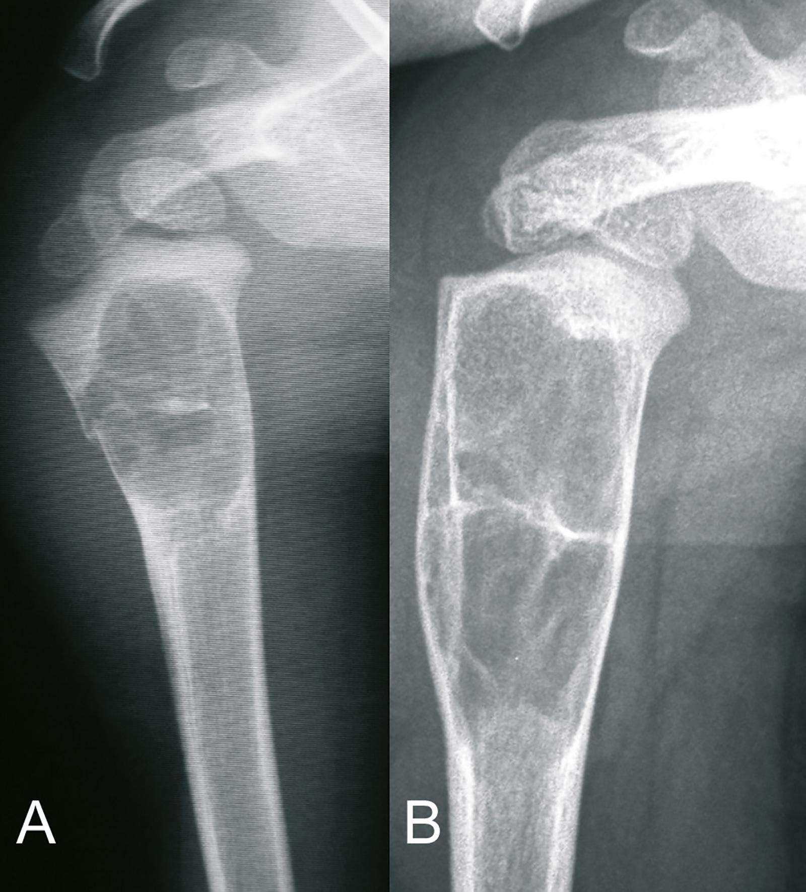 Abb. 8-38: Juvenile Knochenzyste des proximalen Humerus mit pathologischer Fraktur (A). Mit dem weiteren Knochenwachstum wird die Läsion größer und wandert nach distal (B) (Eigentum des Insituts für Klinische Radiologie der Universität Münster)