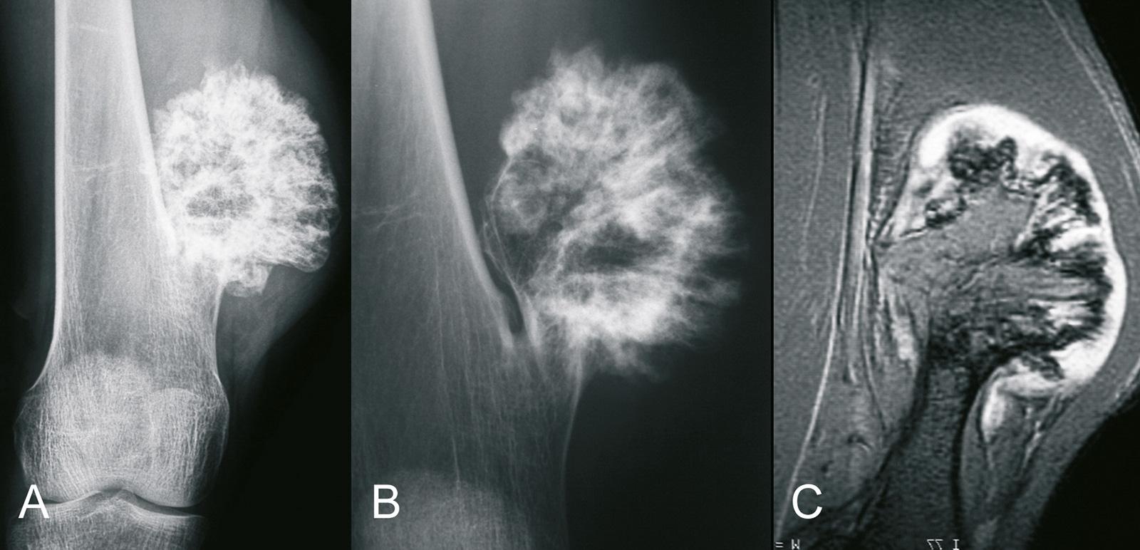 Abb. 8-41: Kartilaginäre Exostose des medialen distalen Femurs im Röntgenbild (A,B) und in der MRT (C) (Eigentum des Instituts für Klinische Radiologie der Universität Münster)