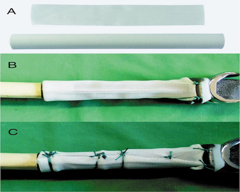 Abb. 8-4: Trevira Schlauch erleichtert die Refixierung der Weichteile (Mit freundlicher Genehmigung der Firma Implantcast (Buxtehude))