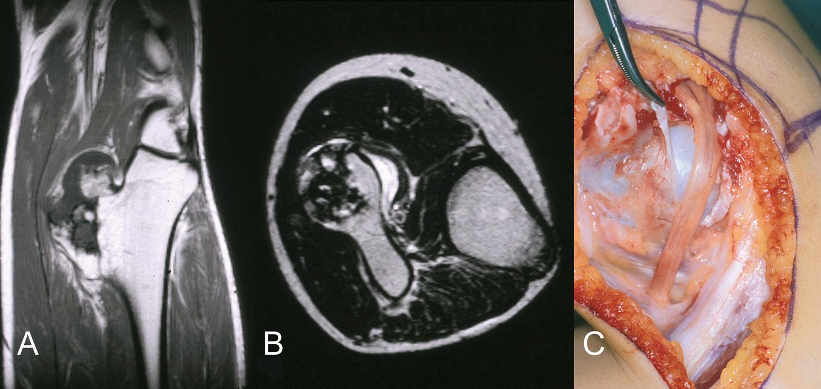 Abb. 8-42: Kartilaginäre Exostose der proximalen Fibula (A,B) mit Kompression des Nervus peroneus (C)