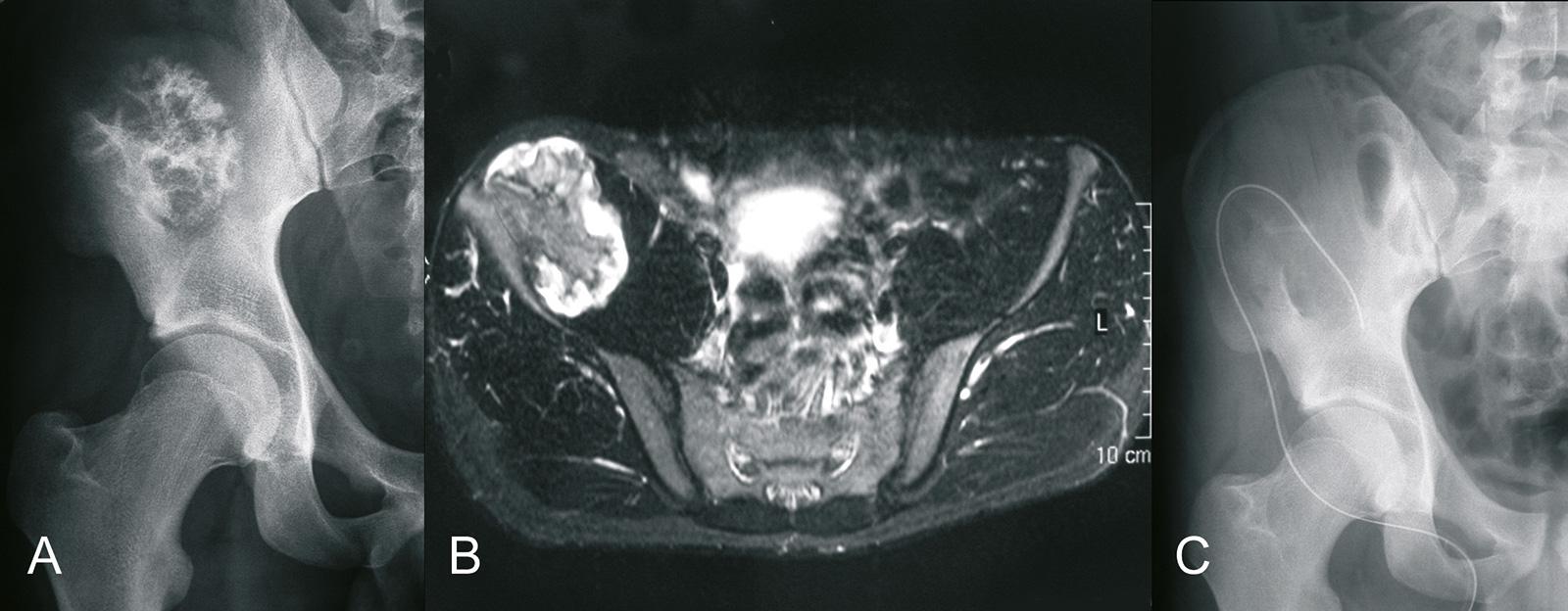 Abb. 8-43: Ausgedehnte Exostose im Bereich des Os iliums (A,B) und nach offener Entfernung (C) (Eigentum des Instituts für Klinische Radiologie der Universität Münster)