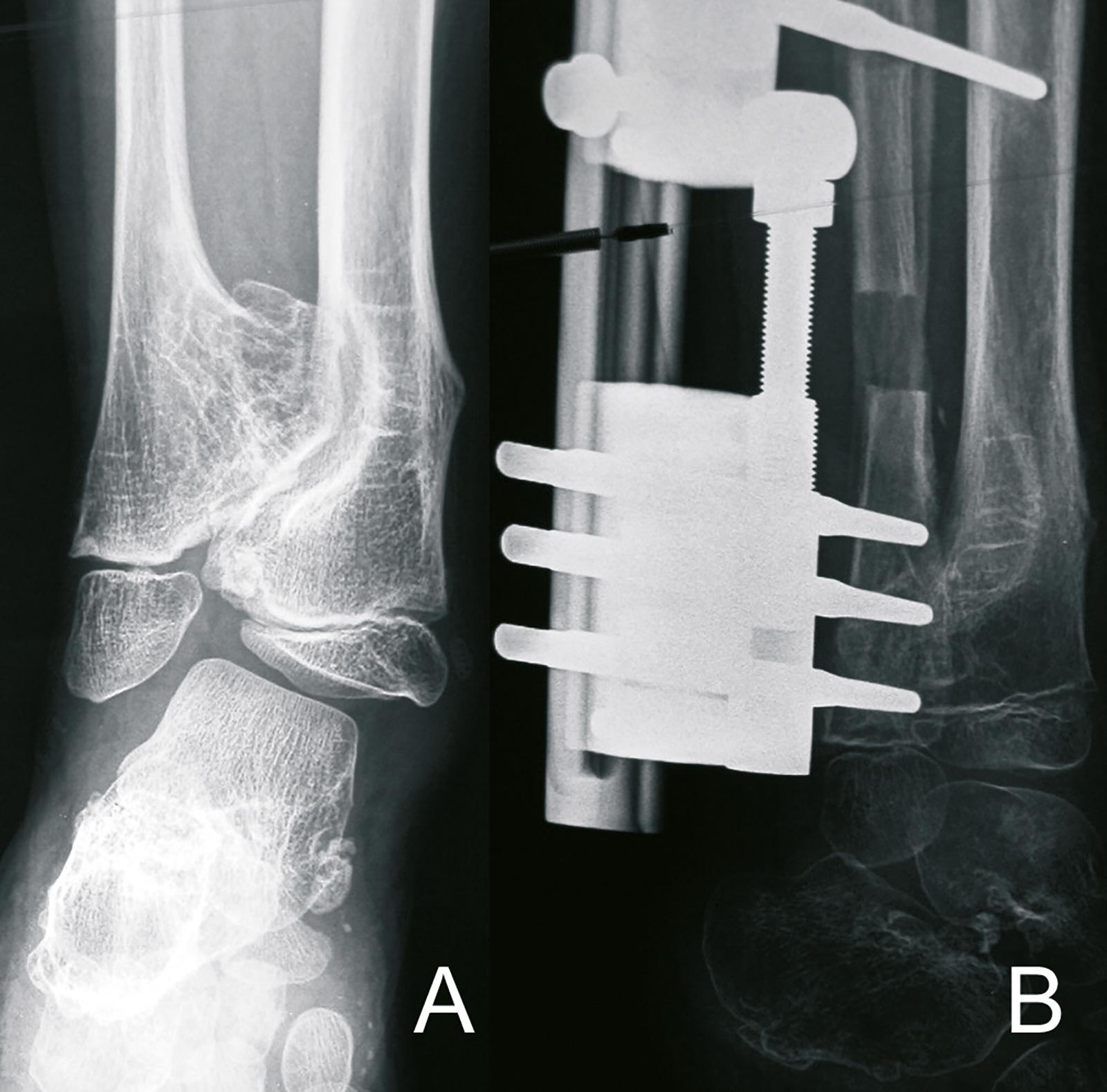 Abb. 8-44: Valgusdeformität des Sprunggelenkes auf der Basis einer von einer Exostose verursachten Wachstumsstörung der Fibula (A), nach Abtragung der Exostose und Fibulaverlängerung mit einem Fixateur (B) (Eigentum des Instituts für Klinische Radiologie
