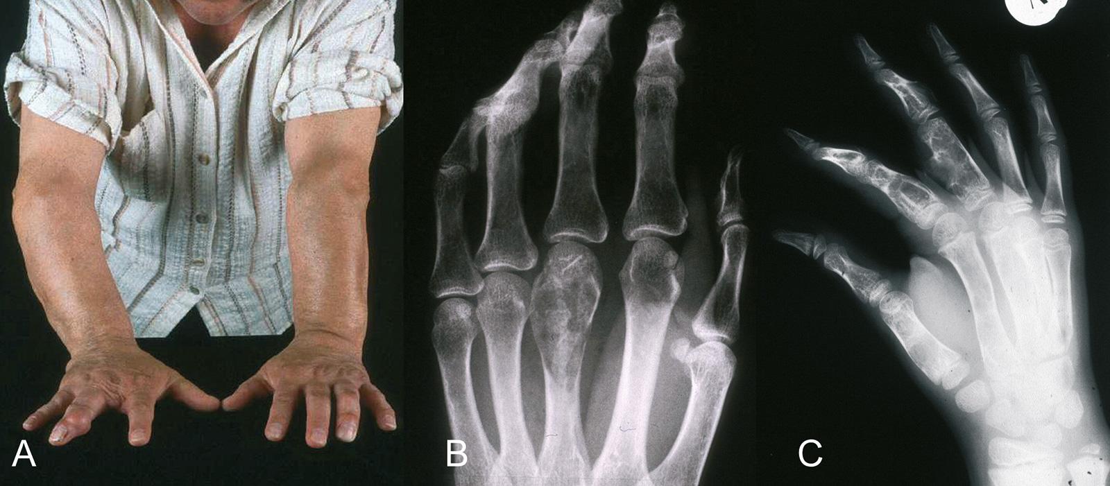 Abb. 8-45: Patient mit einem Morbus Ollier mit einem Chondrosarkom des rechten Mittelfingers (B,C) und klinisch nach Amputation des Mittelfingers (A)