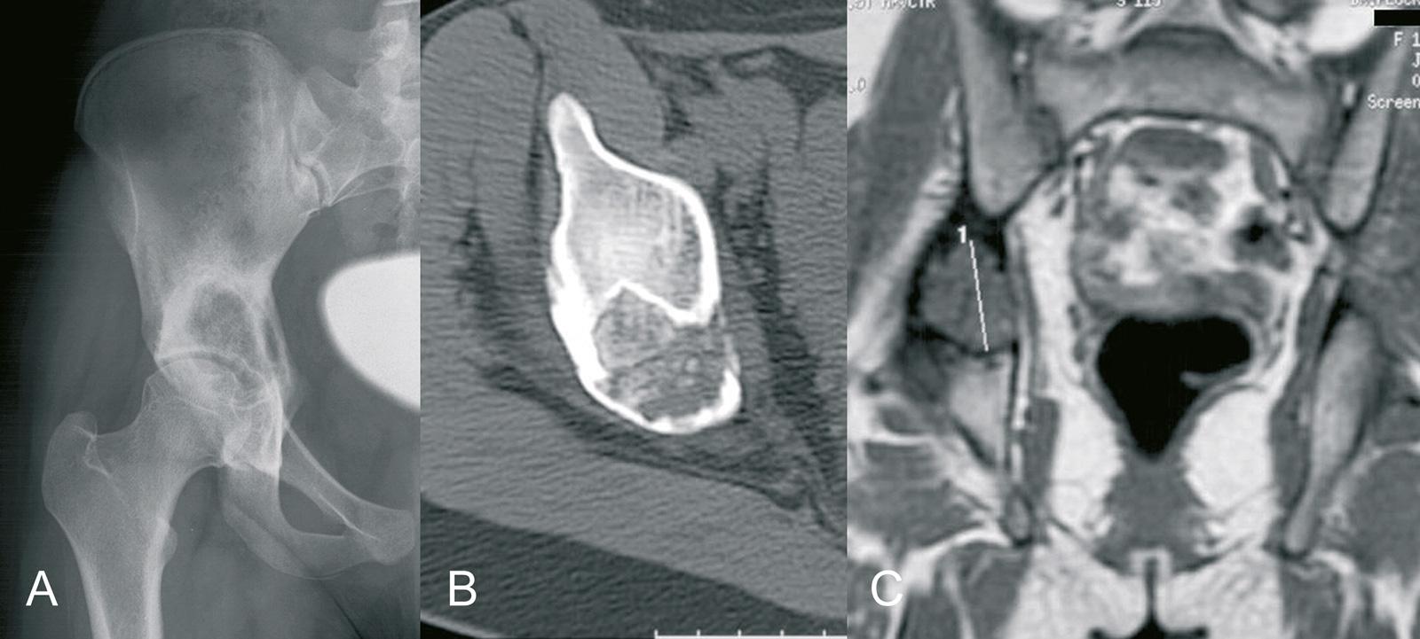 Abb. 8-49: Chondroblastom des Acetabulums: natives Röntgenbild (A), CT- (B) und MRT-Bildgebung (C) (Eigentum des Instituts für Klinische Radiologie der Universität Münster)