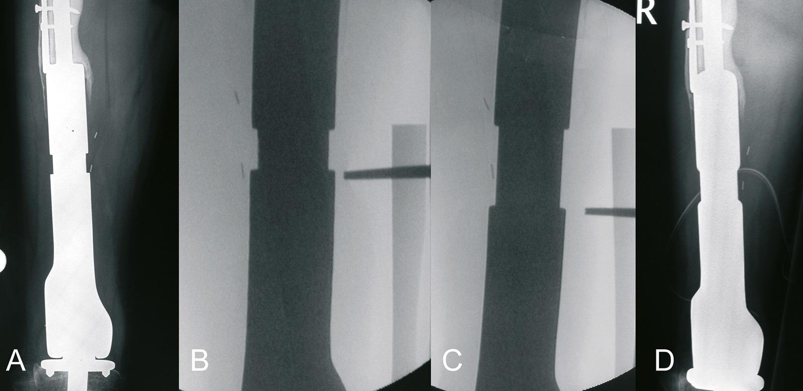 Abb. 8-5: Kotz-Wachstumsprothese (Howmedica) (A), die Prothese kann während des Wachstums mit einem Schraubenschlüssel verlängert werden (B-D)
