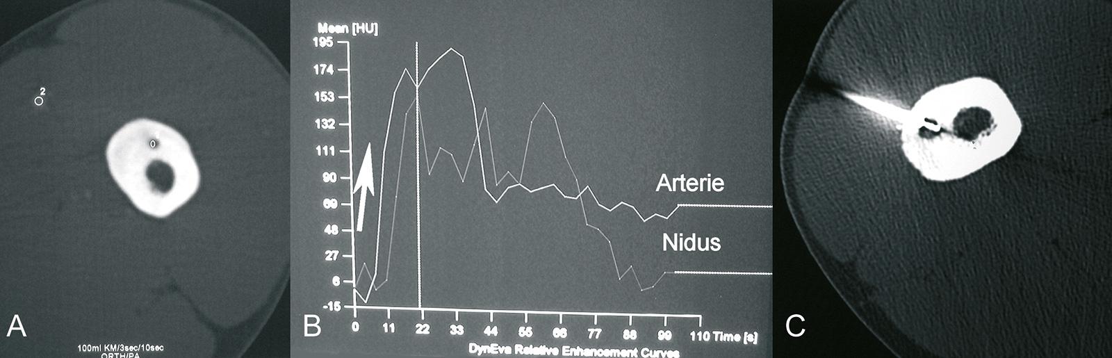 Abb. 8-55: Dynamisches CT: nach Kontrastmittelgabe wird im CT der zeitliche Verlauf der Mehranreicherung in einer nahegelegenen Arterie mit der des Nidus verglichen (A). Zeigen beide initial einen steilen Anstieg (B) spricht dies für ein Osteoidosteom und