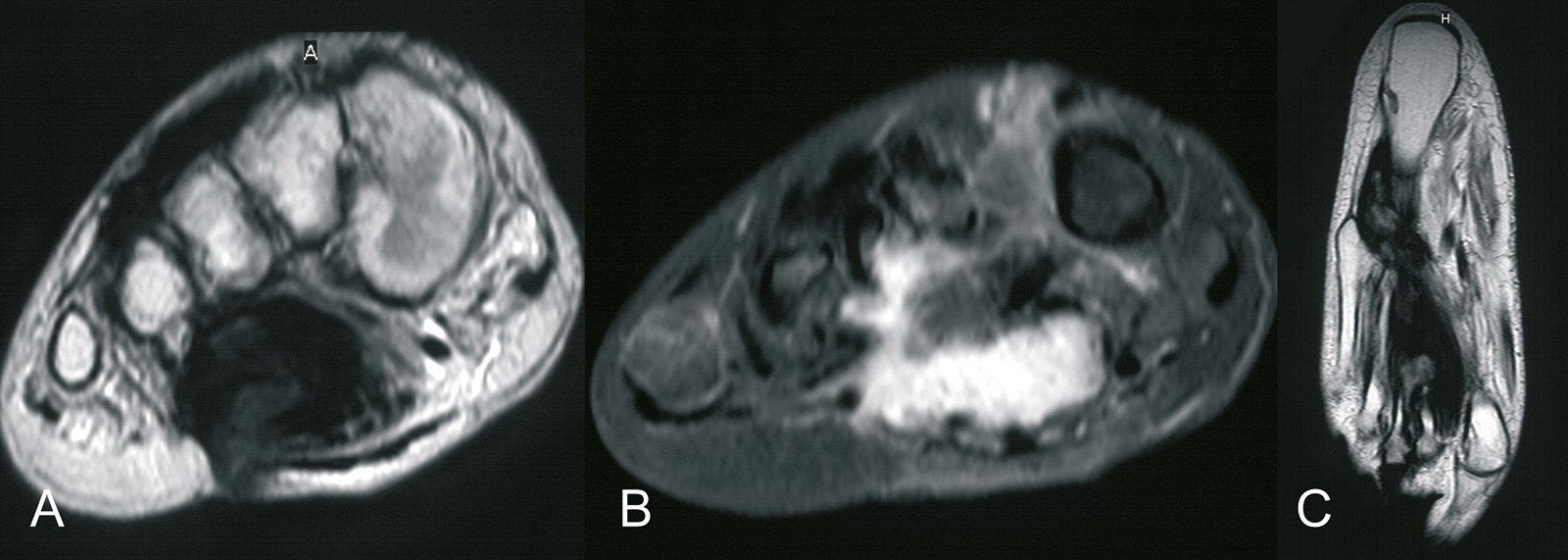 Abb. 8-57: Aggressive Fibromatose im Bereich des Fußgewölbes. (Eigentum des Instituts für Klinische Radiologie der Universität Münster)