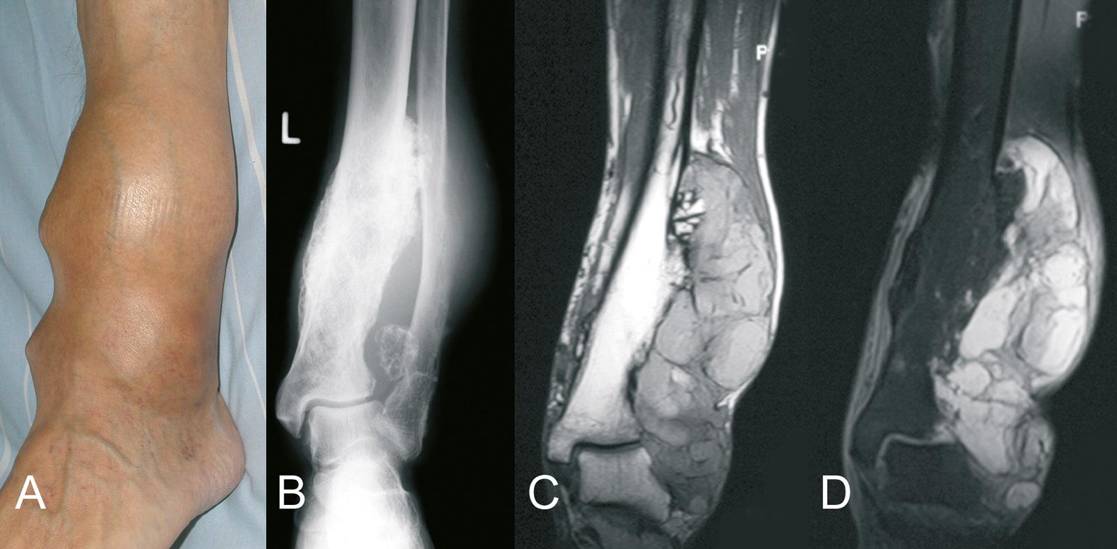 Abb. 8-62: Myxoides G1 Chondrosarkom der distalen Tibia. Aufgrund der massiven Ausdehnung des Tumors war ein Extremitätenerhalt bei diesem Patienten nicht möglich